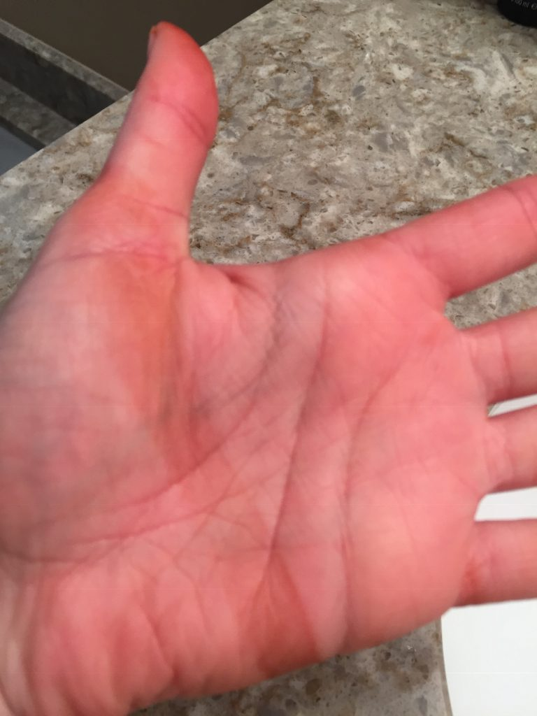 A picture of my hand after I used the dye remover to clean off the strip of brown. It didn't get all the dye off.